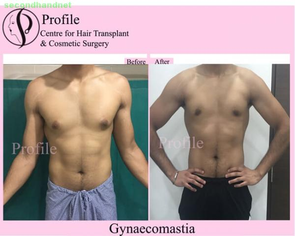 Gynecomastia Surgery in Punjab