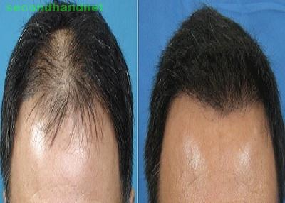 Best Hair Transplant in andheri with great Equipments: