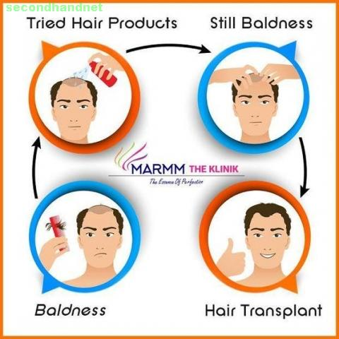 Preventing Hair Loss Before Its Too Late